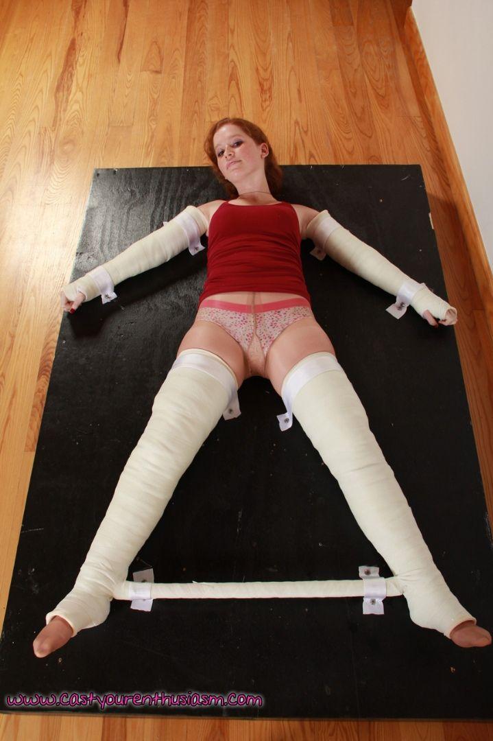 Cast bondage